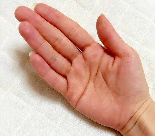 手の母指球の痛み