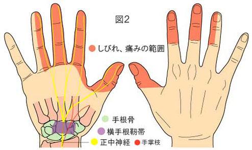 手根管症候群の感覚異常領域