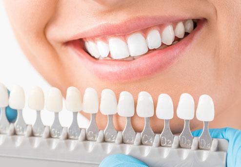 Ästhetische Zahnerhaltung/Zähne aufhellen Zahnarztpraxis Carina Sell