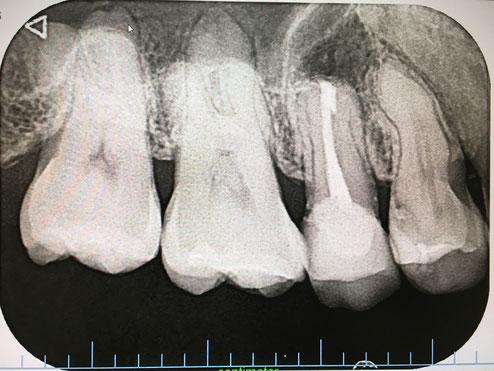 右上第2小臼歯 逆根管治療 術直後