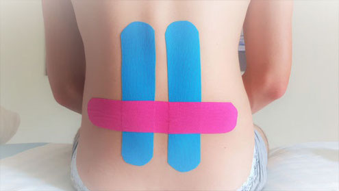 Kinesiotaping Basel, Taping Basel in der Physiotherapie Santewell, Missionsstrasse 28, www.physio-santewell.ch