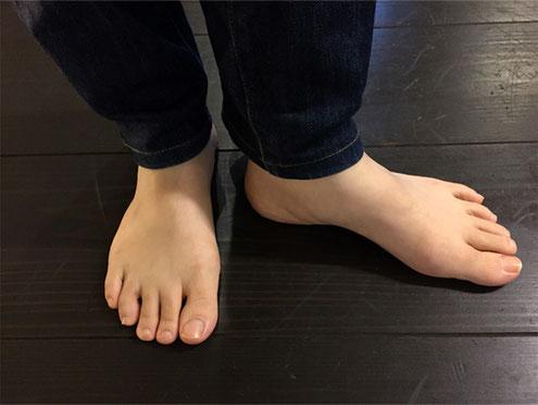 私の足です。コンフォートシューズを履くようになり、曲がっていた指がまっすぐ伸びて足長も伸びました!