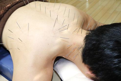 鍼施術イメージ