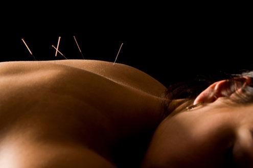 femme ayant des points d'acupuncture dans le dos, plusieurs aiguilles, endormie, paisible