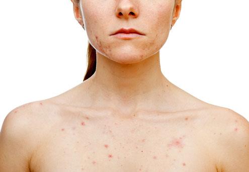 Gesicht und Körper mit Akne