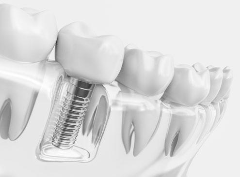 Implantologie der Zahnarztpraxis Carina Sell in Gießen