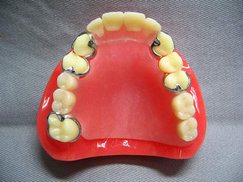 部分入れ歯(プラスチック様材料)局部床義歯 レジン床