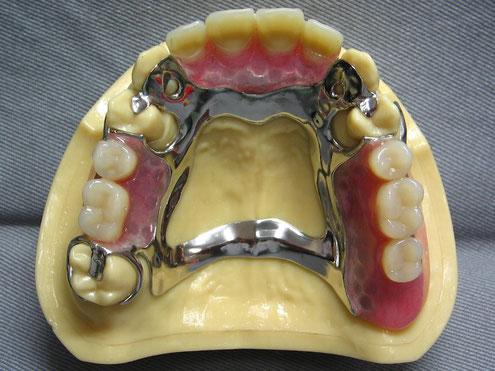 金属床義歯 金属 部分入れ歯