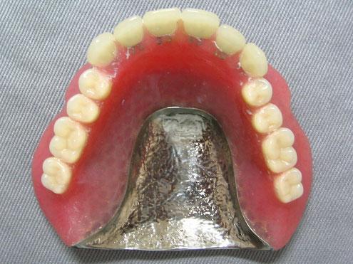金属床総義歯