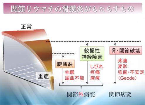 関節リウマチの滑膜炎がもたらすもの、國府幸洋、千葉県柏市、名戸ヶ谷病院