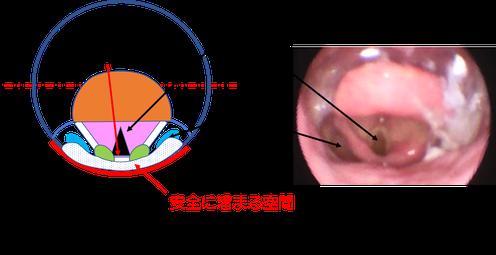 仰臥位では、一口スプーンの3㏄が溜まるところは気管の入り口近いことが分かる