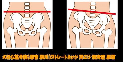 ストレートネックは骨盤が下がって腰痛の原因となる