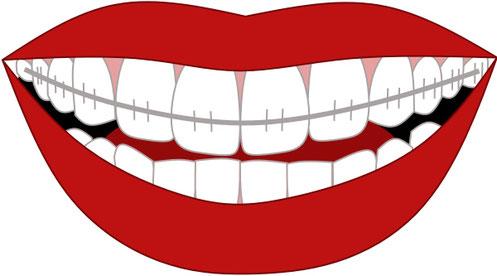 つつじヶ丘「あらさわ歯科医院」の歯科矯正治療
