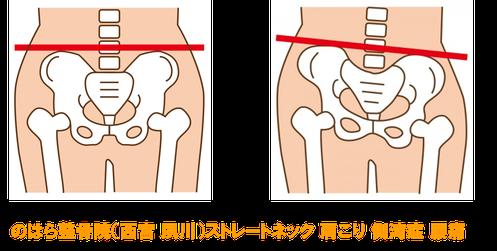 ストレートネックは骨盤がゆがんで腰痛の原因となる