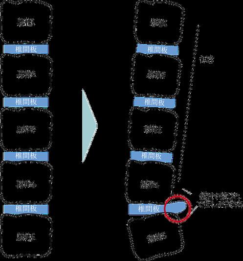 腰部椎間板ヘルニアの説明図松山市あさひ整体院
