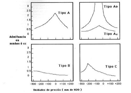Patrones timpanométricos