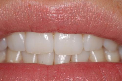 Schöne natürliche Zähne