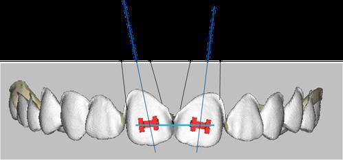 エッジワイズ法の基礎と歯の移動原理