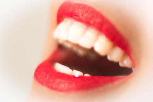 Schöne Zähne für ein strahlendes Lächeln. Immer mehr Menschen wünschen sich heutzutage ein natürlich schönes Weiß für Ihre Zähne. Wir bieten Ihnen ein kosmetisches peroxidfreises Bleachingbehandlung, die durch inovative Wirkstoffe Ihre Zahnfleisch