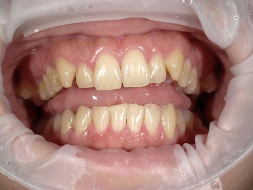 八戸市ホワイトニング くぼた歯科
