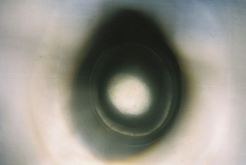 YLOP - EY ©stephan brenn