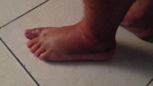 Il mio piede gonfio dopo l'incidente in moto