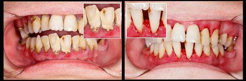 © by Lighthunt     vor und nach Parodontitistherapie