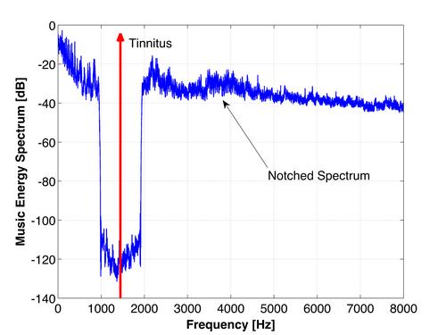 Tinnitus-Therapie: gefiltertes Musik-Spektrum