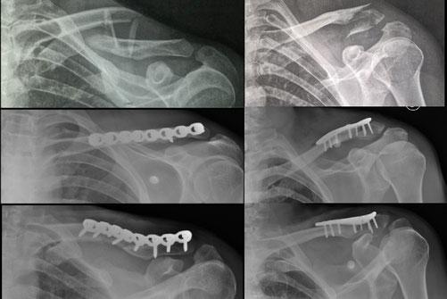 Cirugia deportiva clavicula Toulouse Dr Rémi