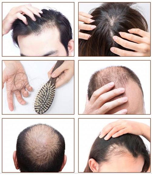 育毛・発毛 鍼灸サロンAKARI