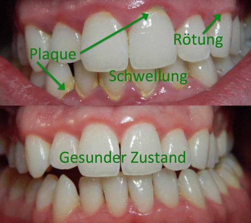 Warum geht das Zahnfleisch zurück?
