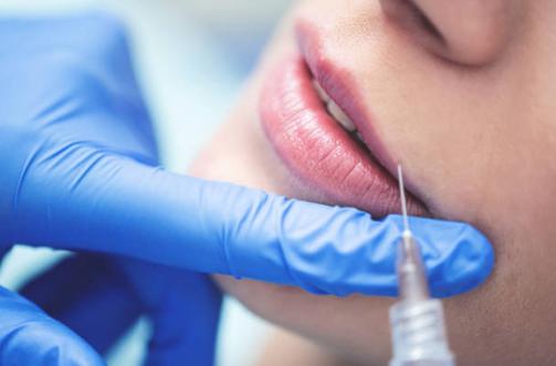 bruno negri, clinica dental pilar de la horadada, dentista pilar de la horadada, dentista alicante, dentista murcia, acido hialuronico, dentista bruno negri, dentista calidad, rejuvenecimiento labial, relleno de labios, aumento de labios, galderma,
