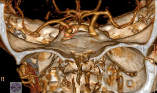 Kleines Aneurysma der rechten Carotis oberhalb der Schädelbasis. Roter Kreis.