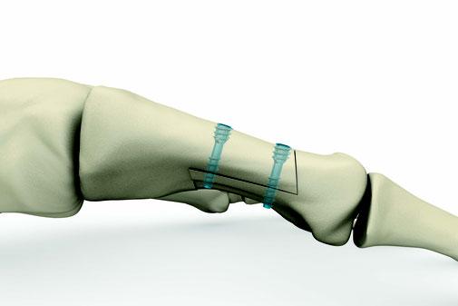 hallux valgus, scarf, ostéotomie, dr Rémi Toulouse chirurgie orthopédique