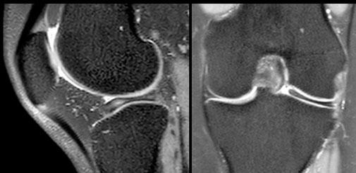 discoid meniscus, Dr Rémi, chirurgie orthopédique Toulouse, Clinique Croix du Sud