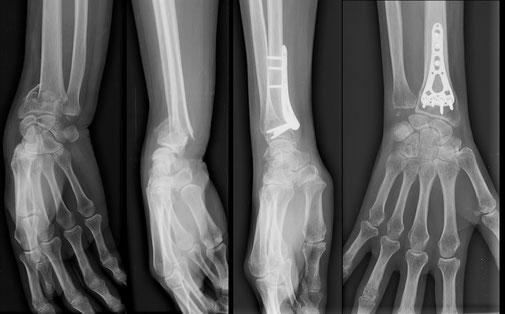 chirurgie sport fracture poignet plaque Dr Rémi chirurgie orthopédique Toulouse