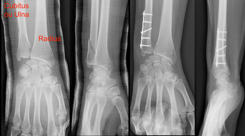 cirugia deportiva fractura muneca Dr Rémi Toulouse St Jean du Languedoc La Croix du Sud