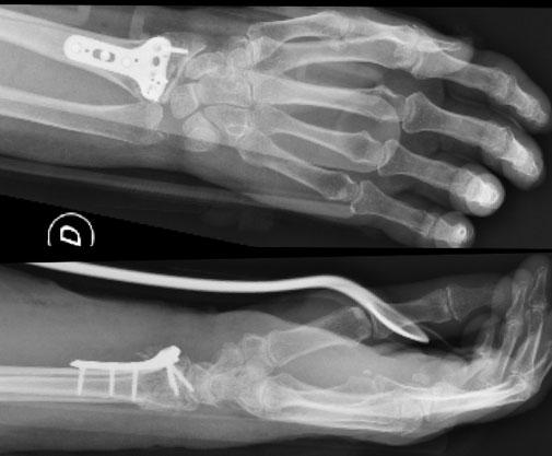 cirugia deportiva muneca placa orthopedia Dr Rémi Toulouse La Croix du Sud