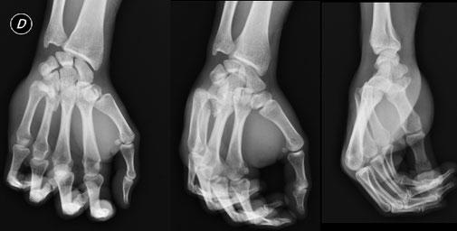 fractura mano Dr Rémi Toulouse cirugia deportiva La Croix du Sud