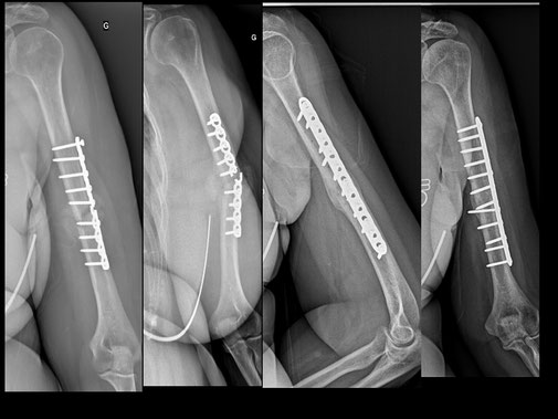 fracture diaphyse humérus, champion espagnol moto, Dr Rémi, chirurgie orthopédiqueToulouse,