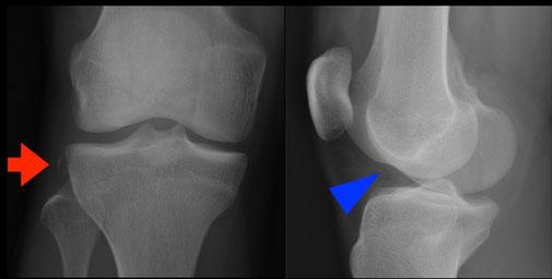 Rupture LCA signes pathognomoniques radios. Dr Rémi chirurgie du sport orthopédie clinique St Jean La Croix du Sud