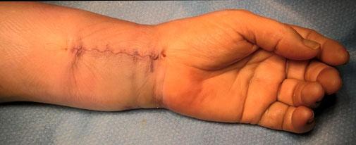 Fractura de la muneca cirugia deportiva Dr Rémi Toulouse La Croix du Sud