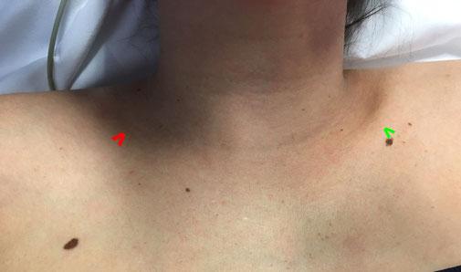 luxation sternocostoclaviculaire chirurgie du sport Dr Rémi orthopédie la croix du sud