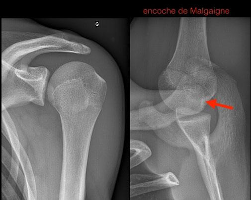 luxacion de hombro, Dr Rémi Toulouse cirugia deportiva Toulouse Croix du Sud