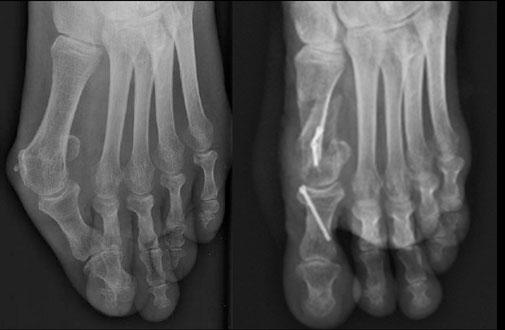 chirurgie orthopédique hallux valgus Dr Rémi Toulouse chirurgie orthopédique St Jean du Languedoc lacroix du sud