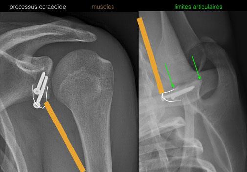 luxación del hombro. Cirugía ortopédica Toulouse Dr Julien Rémi La Croix du Sud St Jean