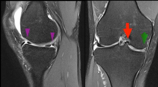 meniscus fracture, Dr Rémi, Toulouse, chirurgie du sport, la Croix du Sud