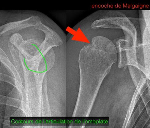 luxation d'épaule réduite encoche Malgaigne Dr Julien Rémi chirurgie orthopédique sport Toulouse
