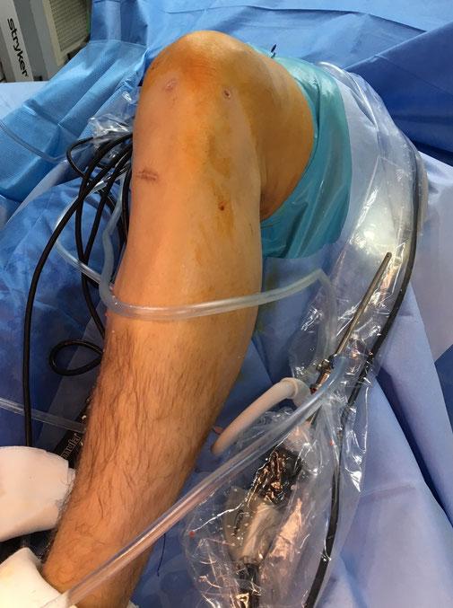 Allogreffe ligamentoplastie LCA rompue, Dr Rémi, chirurgie du sport, Toulouse, La Croix du Sud.