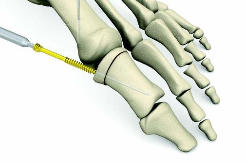 hallux valgus, Akin, Dr Rémi chirurgie orthopédique toulouse